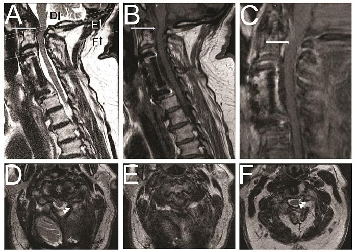Spinal Block MRI